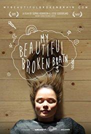 Watch Free My Beautiful Broken Brain (2014)